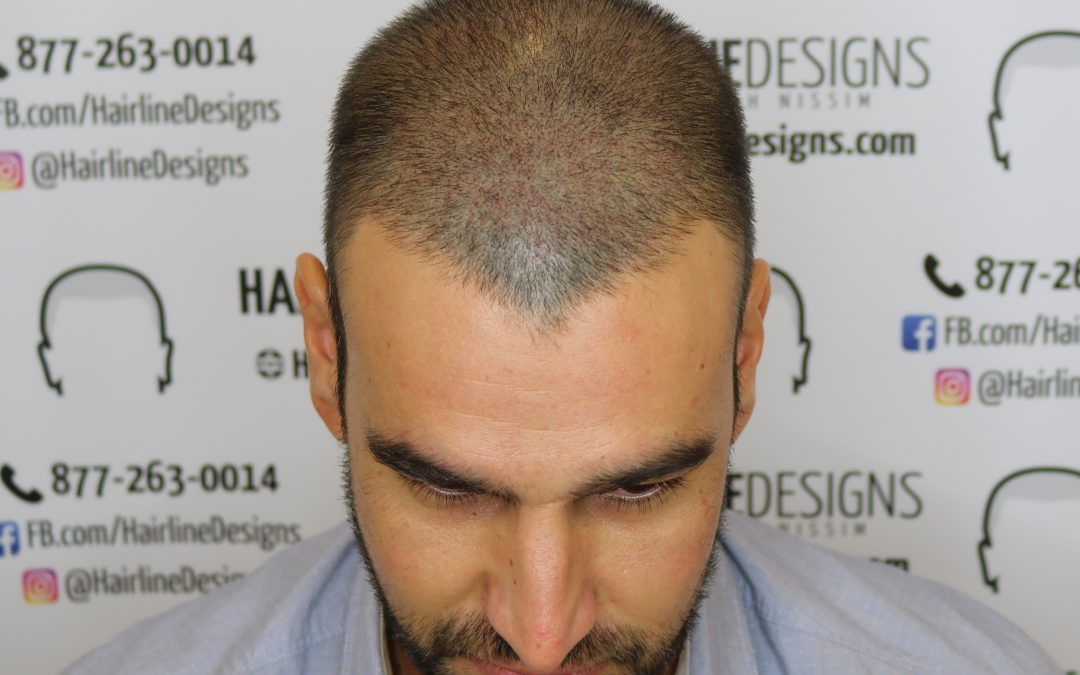 Head shaving and Scalp Micropigmentation (SMP) – What you need to know.