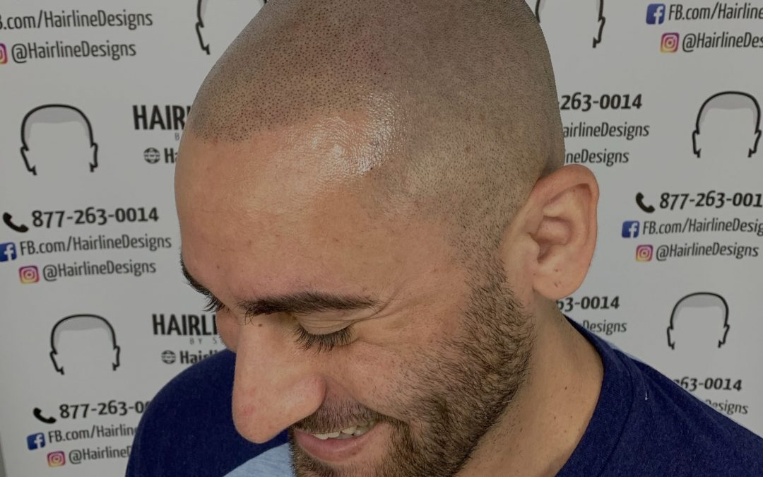 How much does Scalp Micropigmentation (SMP) cost?