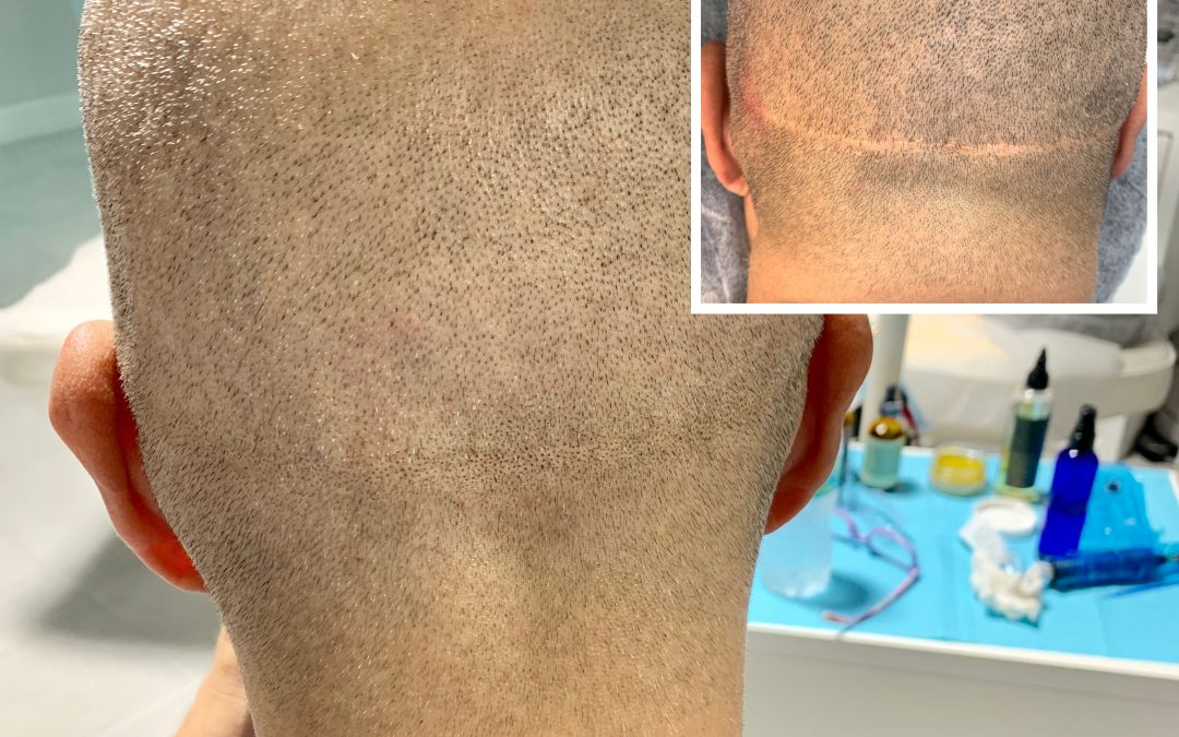 Hair Transplant Scar Cover with SMP and Scalp Micropigmentation